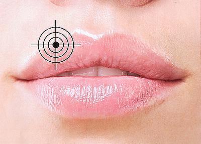 Простуда на губах: как вылечить герпес быстро и навсегда?