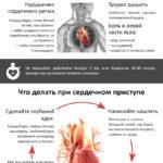 Как спасти жизнь при инфаркте без лекарств (инфографика + статья)