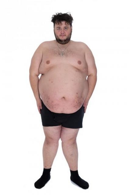 Очень толстый человек