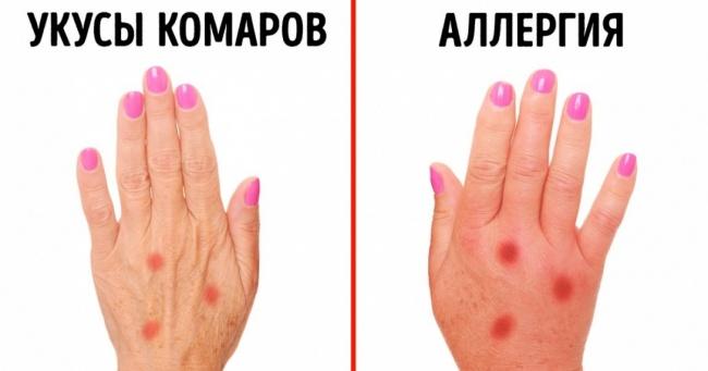 priznaki allergii 1