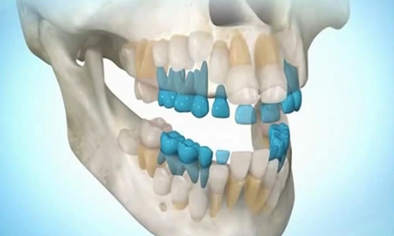 Скоро мы сможем выращивать собственные зубы за 9 недель!?